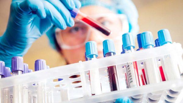 Frau überprüft Blutproben im Labor.